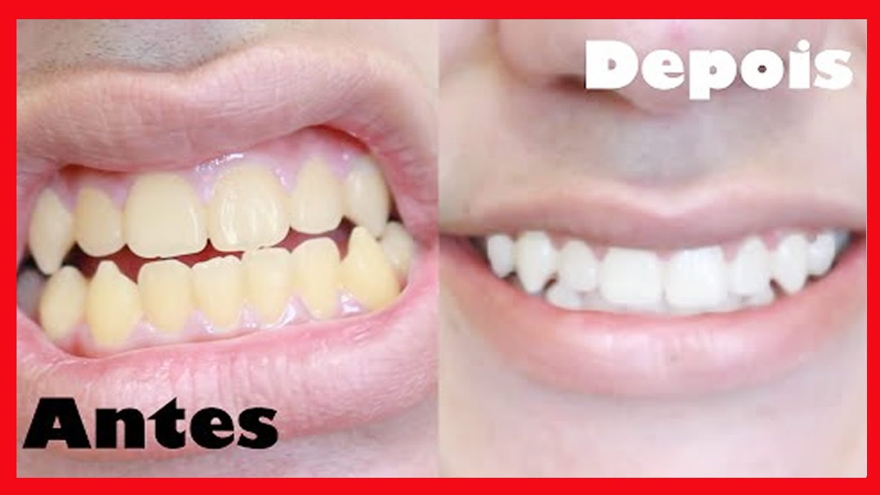 clareamento dental caseiro natural