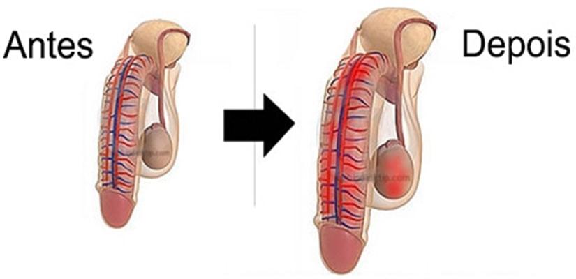 Resultado de imagem para antes depois aumentar penis